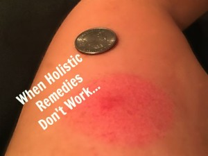 When Holistic Remedies Don't Work | In Johnna's Kitchen